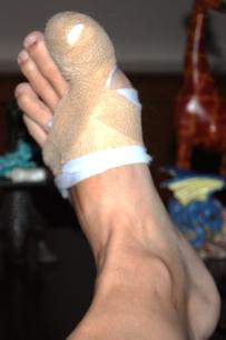 Post ingrown toenail removal
